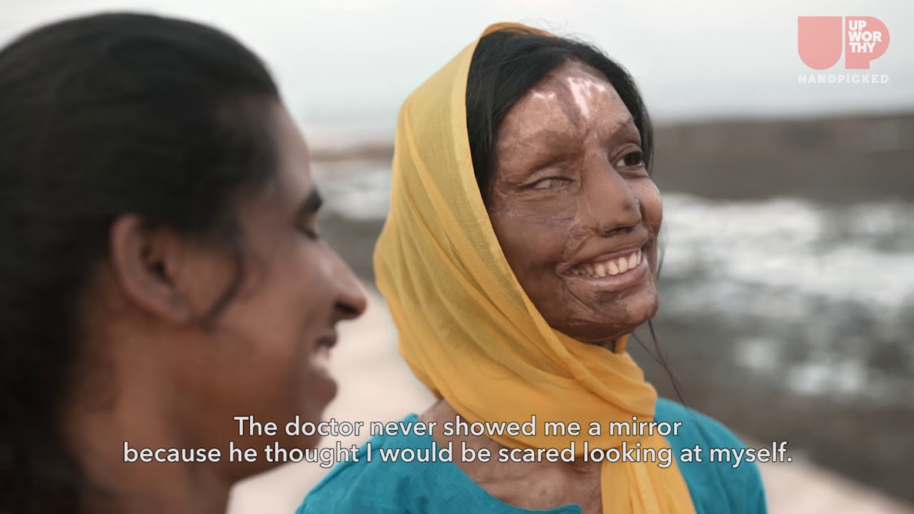 Declared dead after an acid attack,  in renewed life she found new meaning